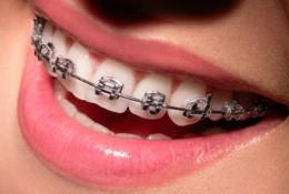 ortodontia-1